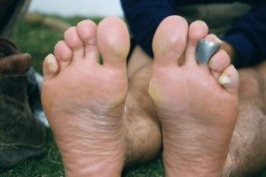 How to prevent and treat blisters
