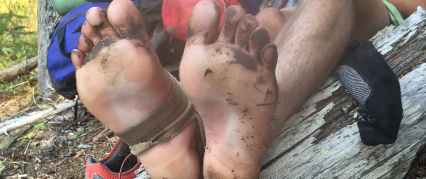 Dirty-feet- How to Prevent and Treat Blisters.